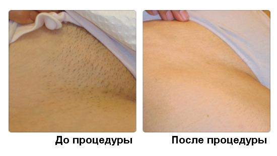 О услуге лазерной эпиляции бикини и прочих мест в Украине