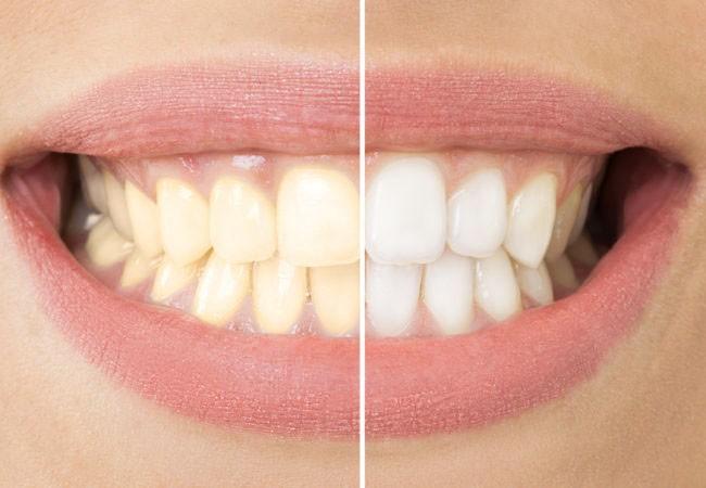 Виды и особенности зубного отбеливания в Харькове