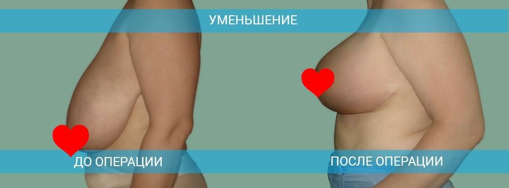 Уменьшение и подтяжка груди в Новороссийске