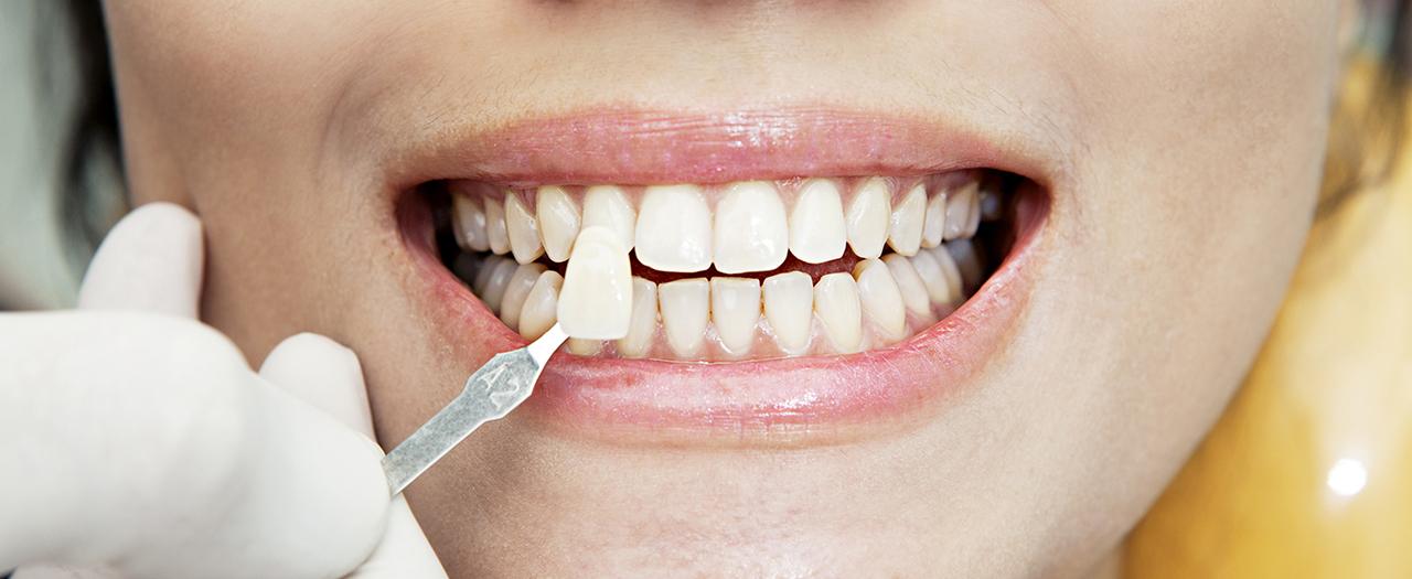 Зубные виниры с установкой в Киеве