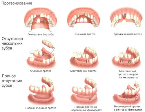 Тяжелые стоматологические процедуры