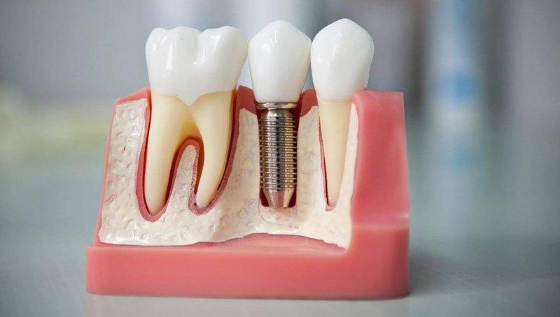 Исправление зубных проблем