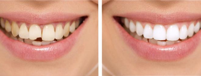 Эстетическая стоматология призвана вернуть не только здоровье зубов