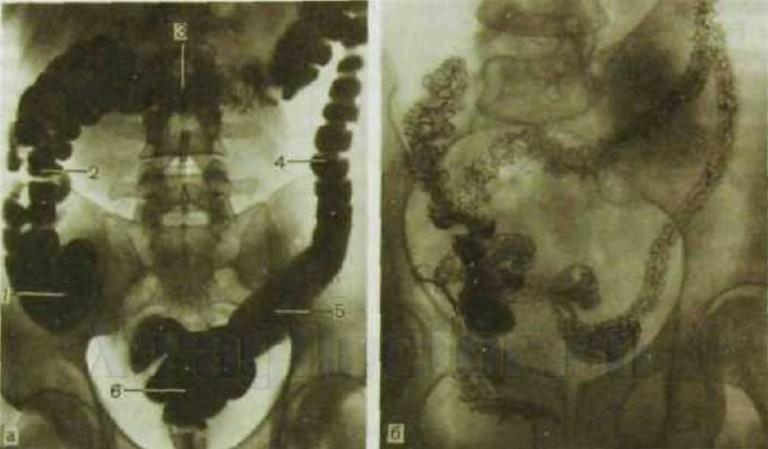 Рентген с контрастом в виде бария